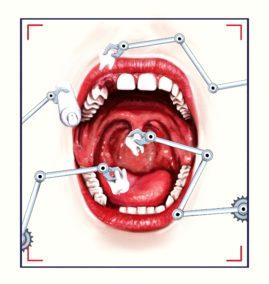 dental illustration