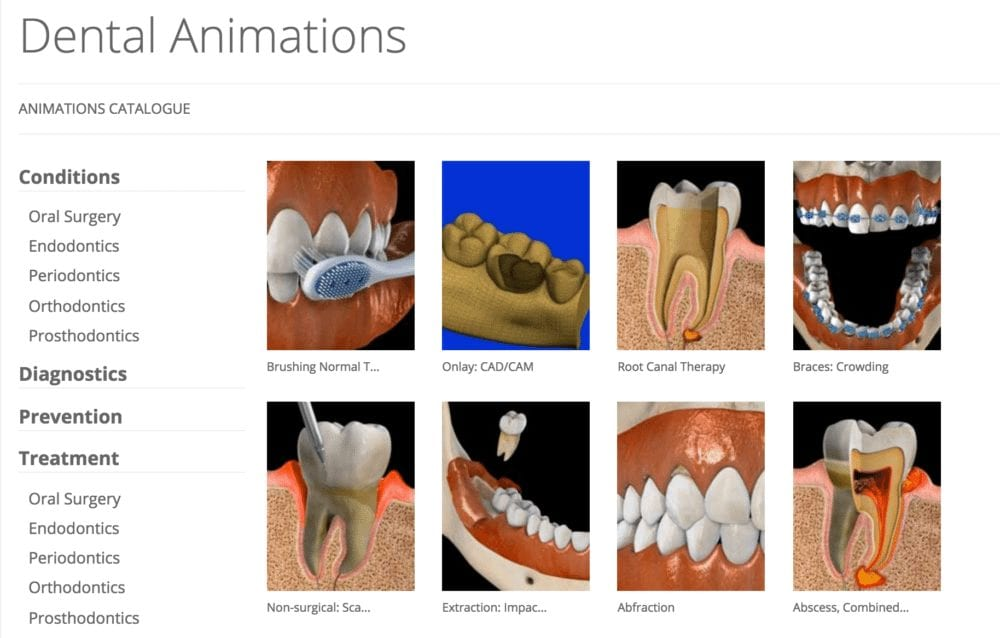 Example of Dental Videos
