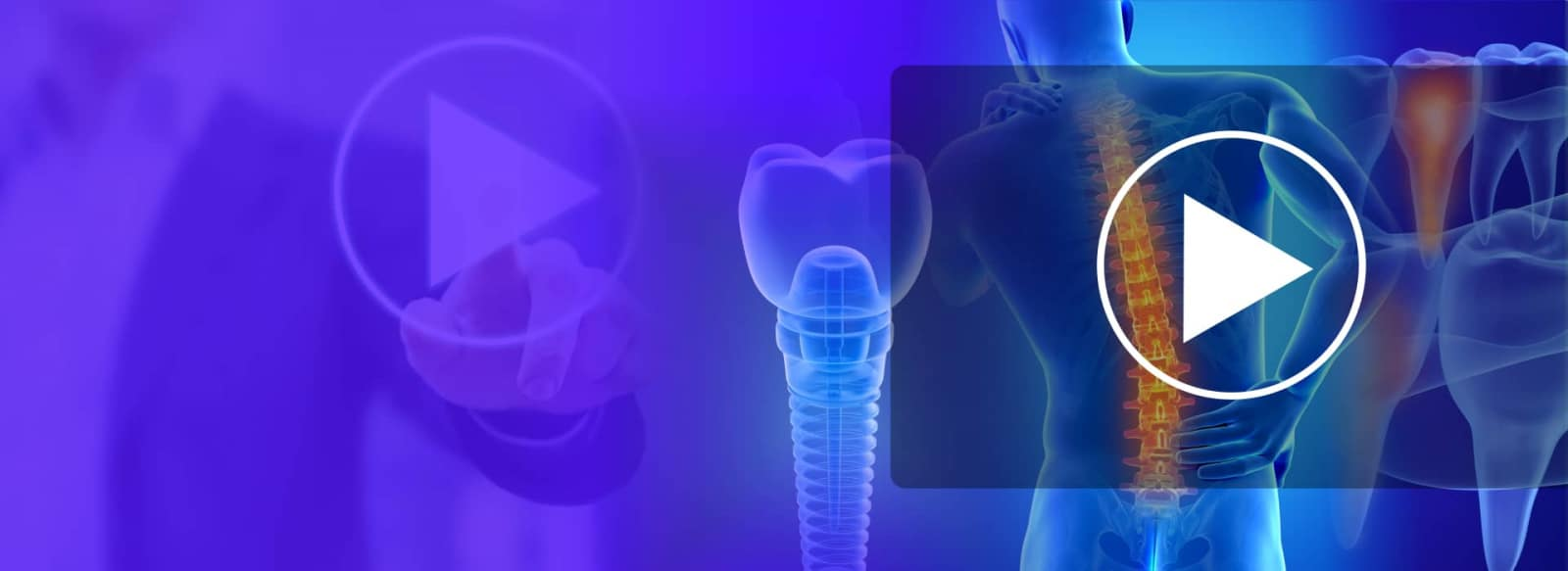 background image showing mix of tooth, dental implant and video