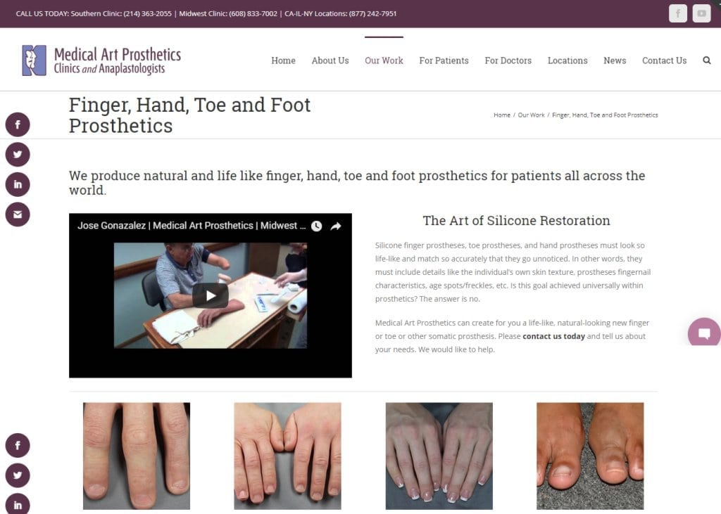 medicalartprosthetics.com screenshot - Showing homepage of Medical Art Prosthetics Clinic, Finger, Hand, Toe and Foot Prosthetics website